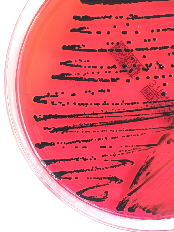 Le LNS participe à la lutte mondiale contre les infections alimentaires